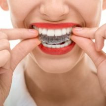 Seven Facts to Know About Orthodontic Expansion Appliances