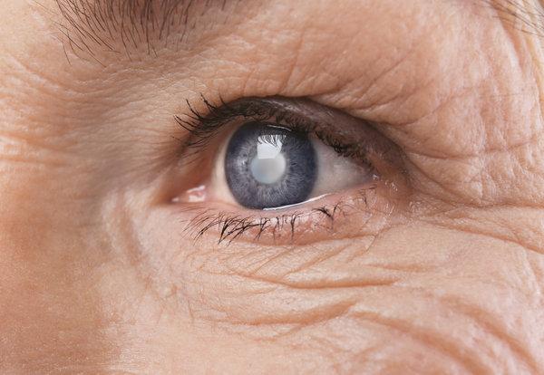 glaucoma natural