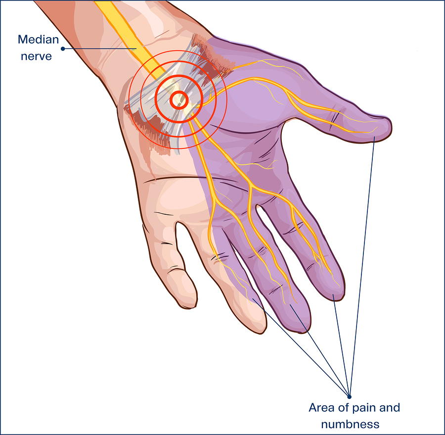 heal carpal tunnel syndrome naturally