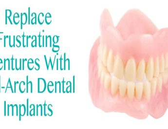 Replace Frustrating Dentures With Full-Arch Dental Implants In California
